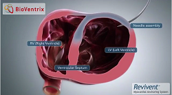 BioVentrix's Revivent Myocardial Anchoring System--Courtesy of BioVentrix