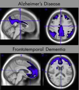 """Different types of dementia cause distinctive patterns of change in the brain that can be detected using brain imaging.  ADMdx has developed proprietary pattern recognition software able to identify different forms of dementia, predict rates of worsening, and identify treatment response."""